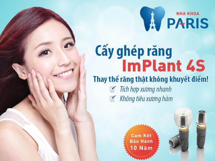 Trồng răng cửa bằng công nghệ cấy ghép Implant 4S tại NK Paris