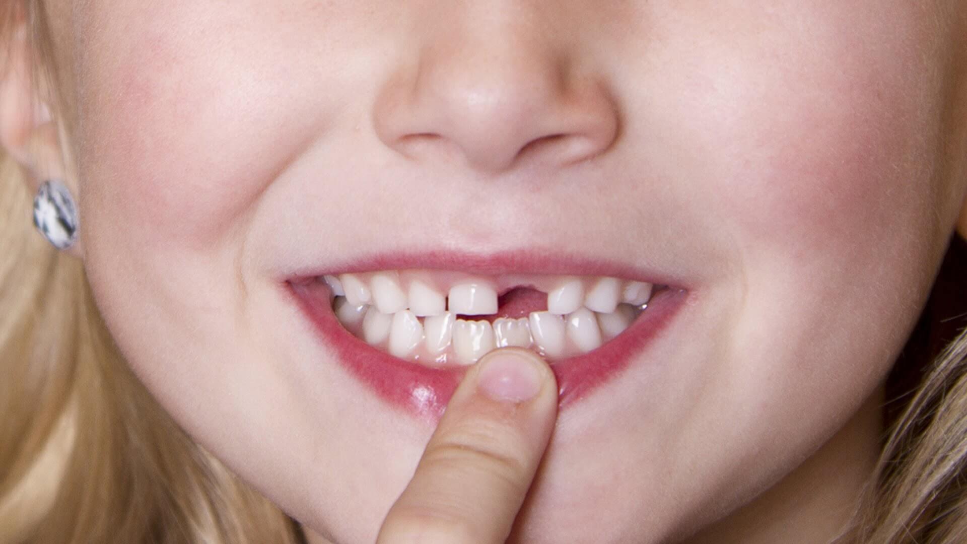 GIẢI ĐÁP 2017 – Trồng răng cửa bằng phương pháp nào tốt nhất?
