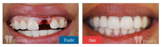 Hình ảnh ca trồng răng cửa của khách hàng