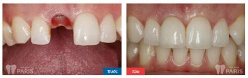 Trồng Răng Sứ Titan - Phục hình răng đạt tiêu chuẩn9