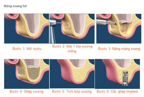 Trường hợp nào cần nâng xoang hàm khi cấy implant?