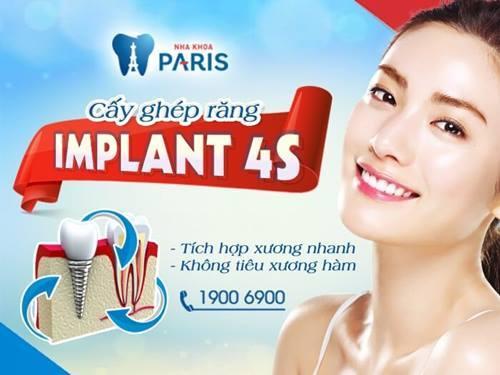 các loại trụ Implant phổ biến