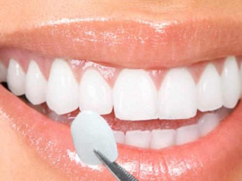 Có nên trồng răng khểnh không