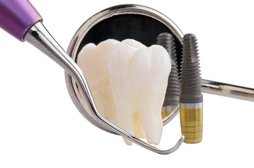 Hôi miệng sau khi cấy implant xử trí như thế nào?