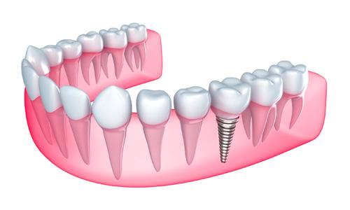 Khi nào nên lắp Implant