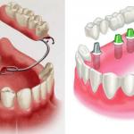 3 loại răng giả tháo lắp & Những đặc điểm BẠN NÊN BIẾT