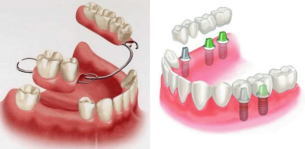 Bảng giá hàm răng giả tháo lắp bao nhiêu tiền là chuẩn và chính xác 1