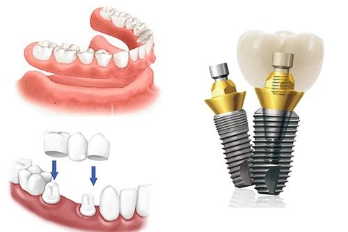 Làm răng giả cả hàm