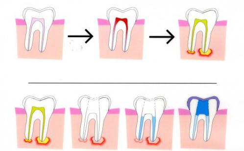 Lung lay chân răng có phải nhổ đi trồng lại không
