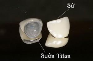 Trồng răng sứ Titan giải pháp thay thế răng mất tốt nhất