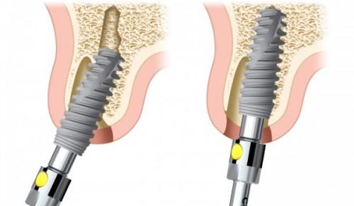 Trồng răng implant là gì? Những thông tin cần biết