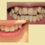 Trồng răng nanh giả CAM KẾT An Toàn, đẹp tự nhiên, không đau nhức