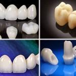 Trồng răng sứ không kim loại LÀNH TÍNH, giá bao nhiêu tiền?