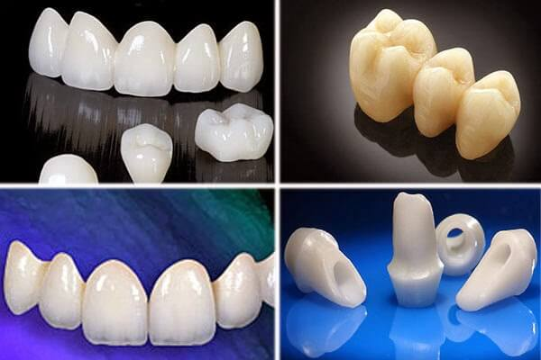 Trồng răng sứ không kim loại LÀNH TÍNH,giá bao nhiêu tiền? 2
