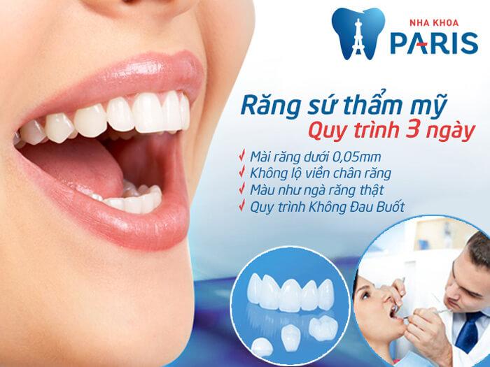 Các phương pháp trồng răng khểnh giả & 5 điều cần lưu ý hiện nay 2