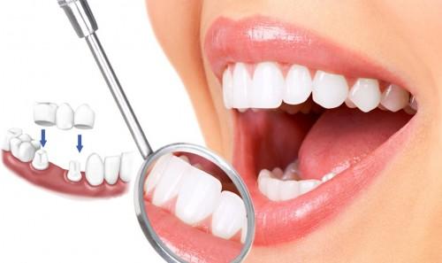 Bảng giá ưu đãi chi phí trồng răng giả tại Nha khoa Paris