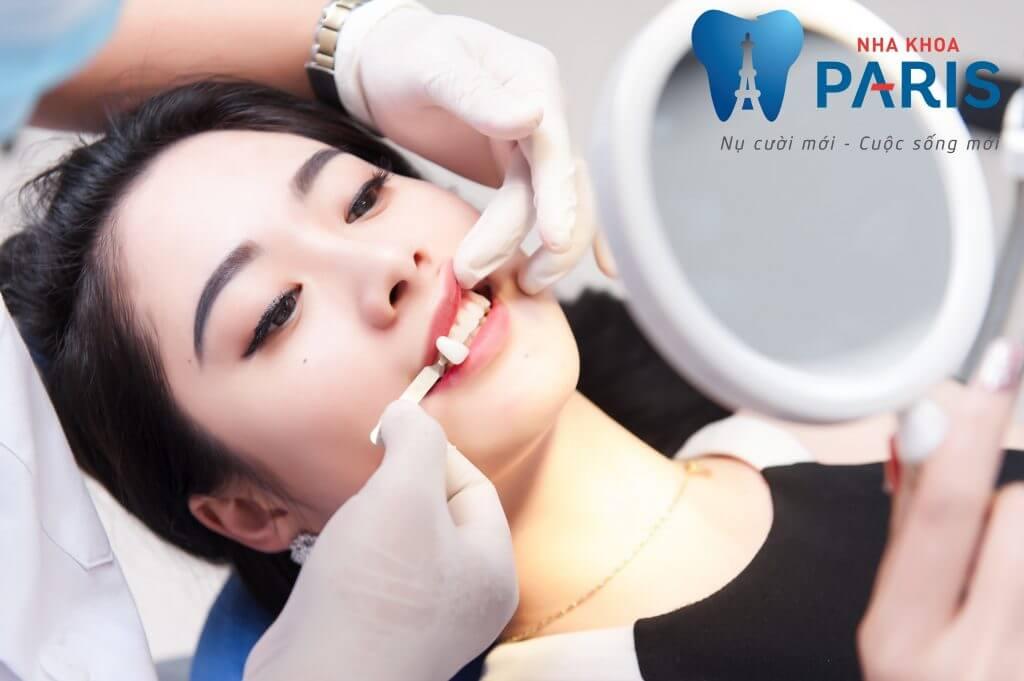 Cách mài răng khểnh SIÊU HOT - Chi phí trồng răng SIÊU RẺ 2