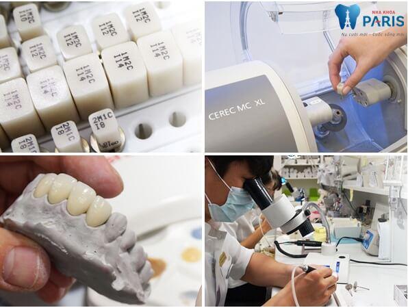 Sự kết hợp giữa làm cầu răng và Implant tại Nha Khoa Paris