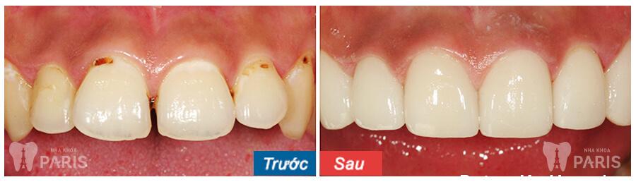 Làm răng sứ có ảnh hưởng gì không? Làm răng sứ có bị đau không? 2