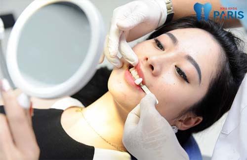 Tạo răng khểnh tự nhiên bằng trám răng hoặc bọc răng sứ 2