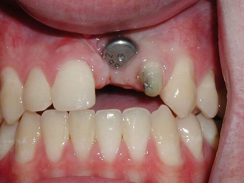 Trồng răng giả có ảnh hưởng gì không 1