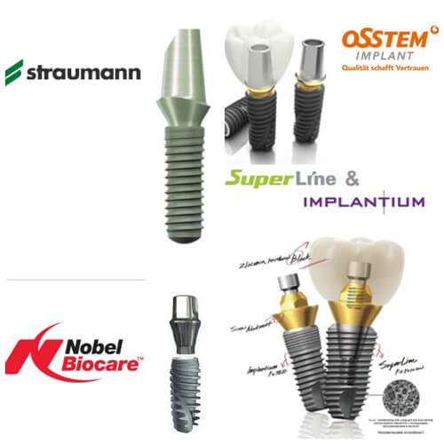 Dịch vụ trồng răng Implant tốt nhất và rẻ nhất tại Hà Nội 1