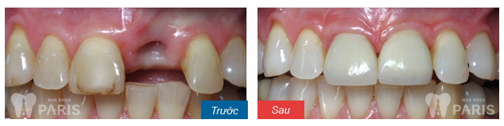 Nhổ răng bao lâu thì trồng răng giả