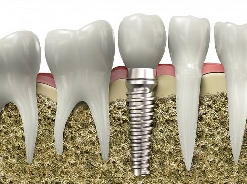 Bị sâu răng và vỡ mẻ gần hết phải làm sao để điều trị 2