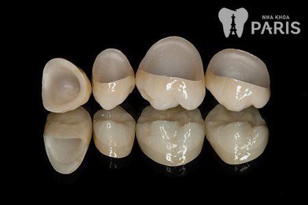 Răng sứ giữ được bao lâu 1