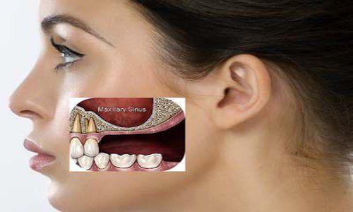 Tiêu xương răng có cấy ghép Implant được không 1