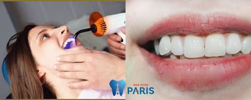 Làm sao để có răng khểnh – Bí quyết có nụ cười xinh tươi?