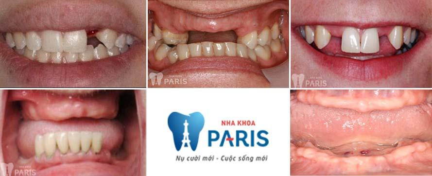 công nghệ trồng răng