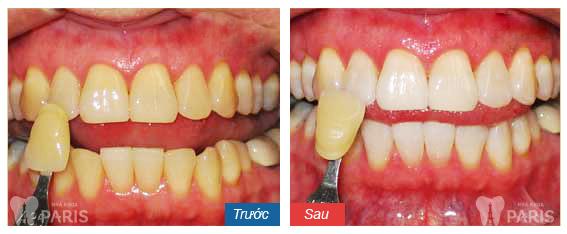 Làm răng sứ bị viêm lợi 7
