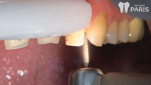 Làm cầu răng sứ có đau không 1