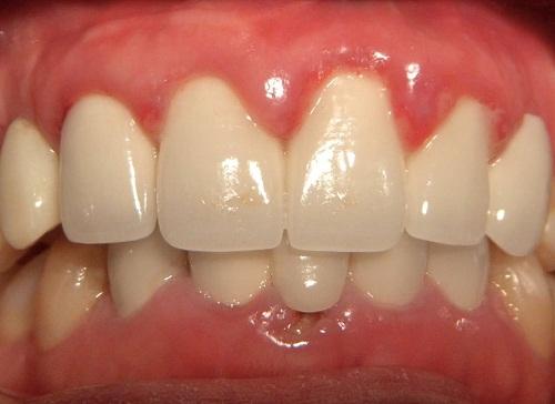 Làm răng sứ bị viêm lợi 1