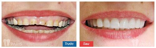 Làm răng sứ bị viêm lợi 8