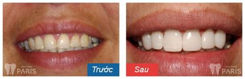 Răng sứ không kim loại 3