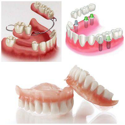 """Chỉnh răng bằng hàm tháo lắp - Giải Pháp thay thế răng """"tiết kiệm"""" nhất 2"""