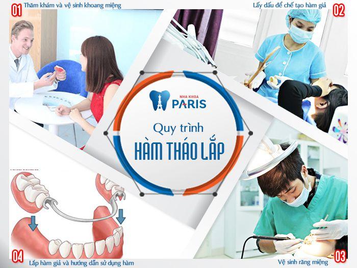 """Chỉnh răng bằng hàm tháo lắp - Giải Pháp thay thế răng """"tiết kiệm"""" nhất 3"""