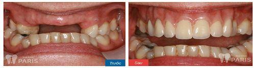 khách hàng sử dụng quy trình cấy ghép Implant