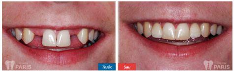 Chi phí trồng răng nanh giá bao nhiêu tiền? [Bảng giá Mới nhất 2018] 2