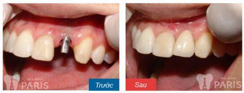 Chi phí trồng răng nanh giá bao nhiêu tiền? [Bảng giá Mới nhất 2018] 4