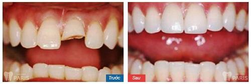 kinh nghiệm làm răng sứ