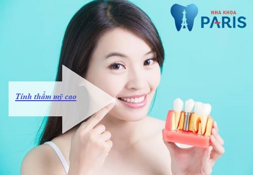 ưu điểm của cấy ghép răng Implant2