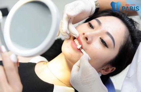 [BS tư vấn] Làm sao để có răng khểnh mọc Đẹp tự nhiên nhất? 2