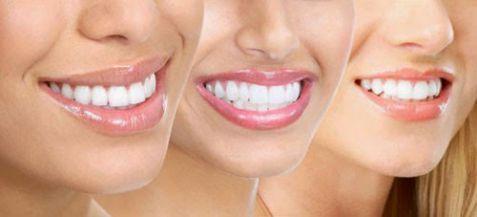 Quy trình trồng răng sứ theo các bước như thế nào là chuẩn? 2