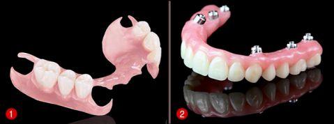 Giá làm răng giả nguyên hàm? [Bảng giá MỚI & Ưu đãi nhất 2018] 1