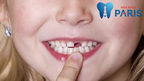 [Giải đáp] Trồng răng cửa bằng phương pháp nào tốt nhất 2017 1