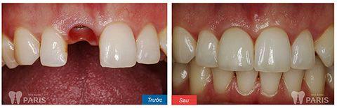 [Giải đáp] Trồng răng cửa bằng phương pháp nào tốt nhất 2017 2