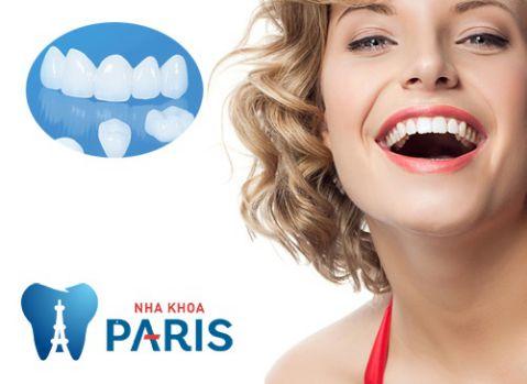 Quy trình trồng răng sứ với công nghệ chuẩn Pháp mới Năm 2018 1